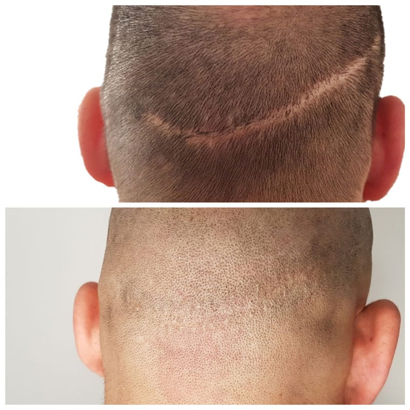 Scalp Micropigmentation for Scars
