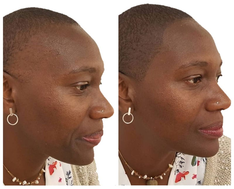 Scalp Micropigmentation For Women