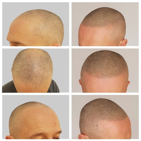 Scalp Micropigmentation Hairline Restoration