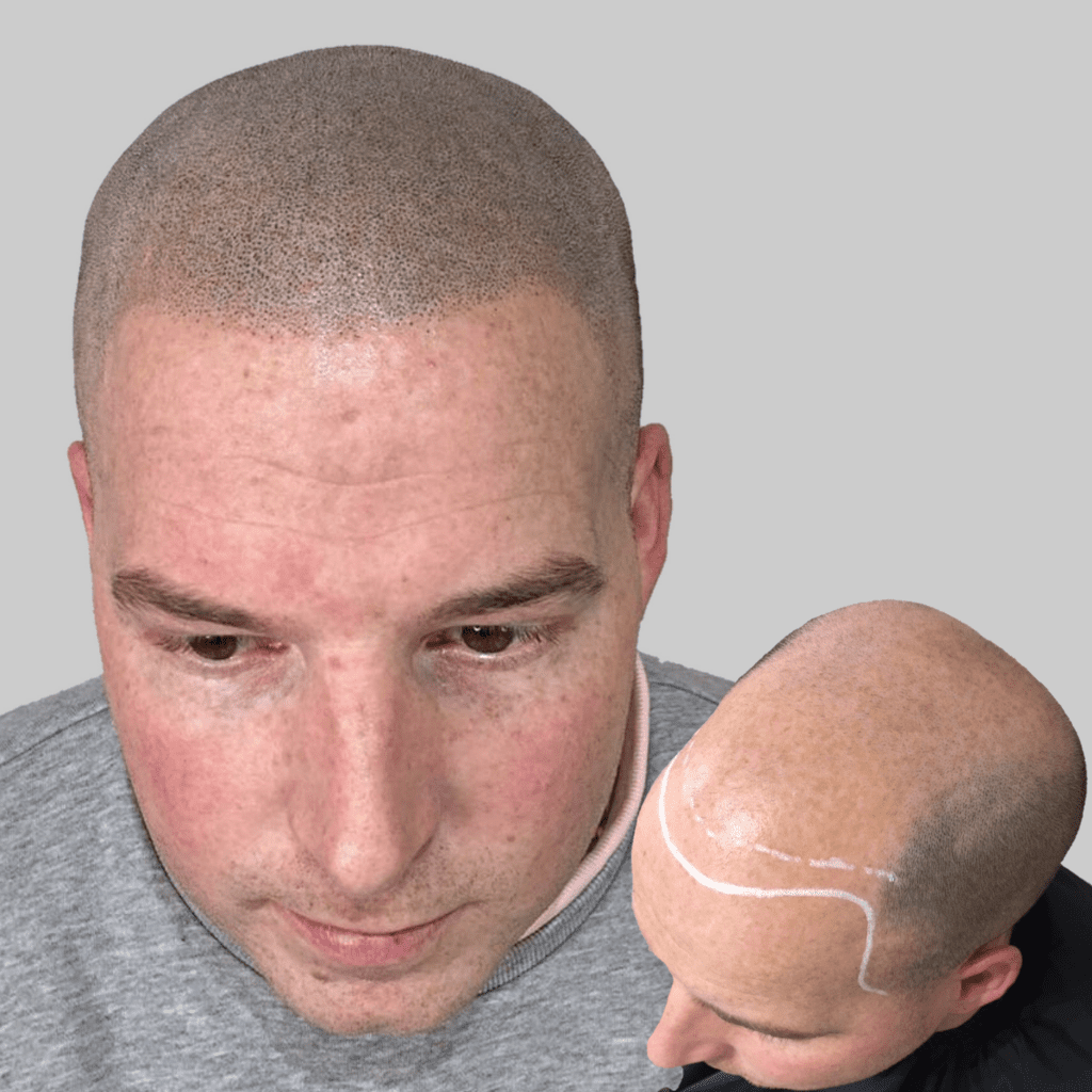 Scalp Micropigmentation Scars