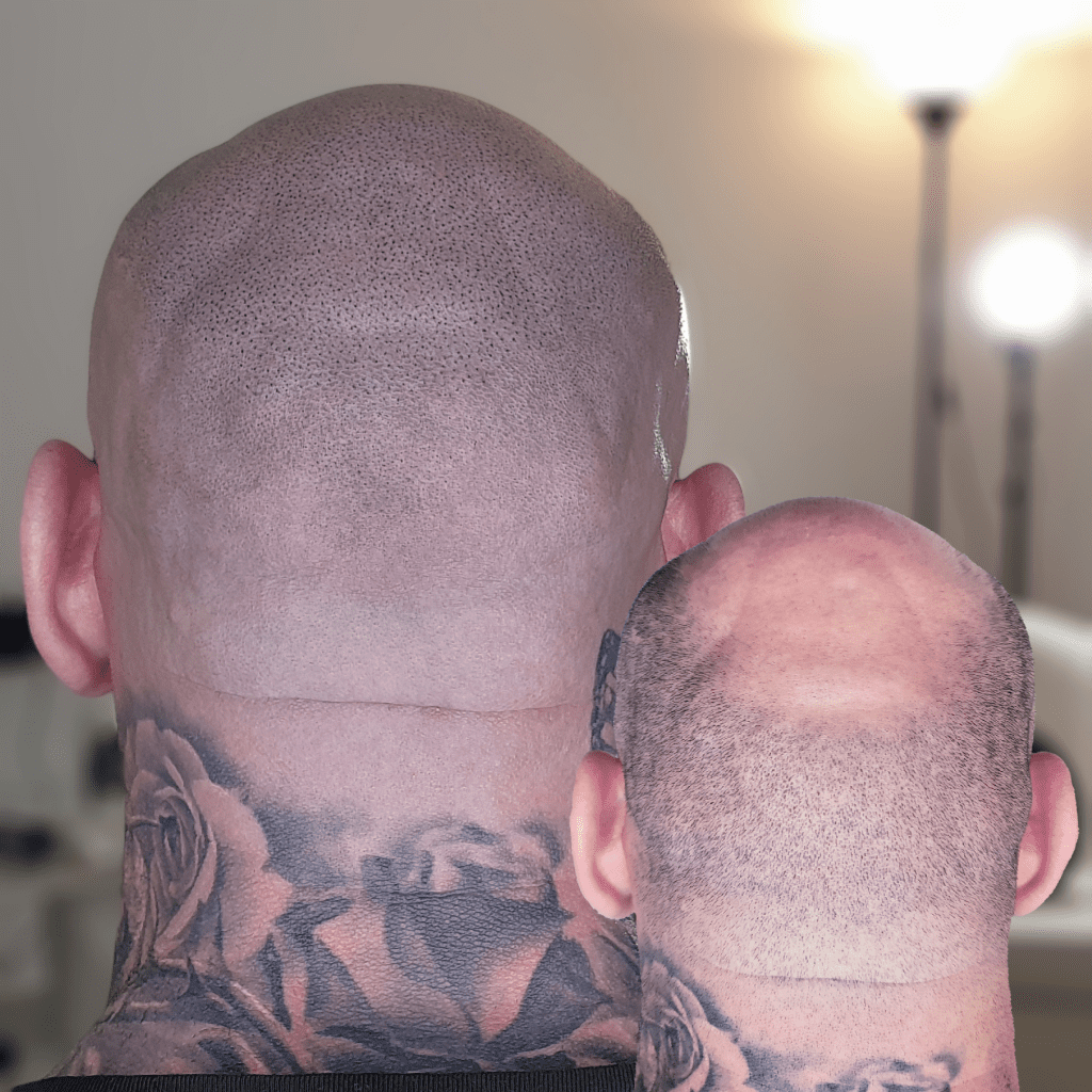 Scalp Micropigmentation hairline