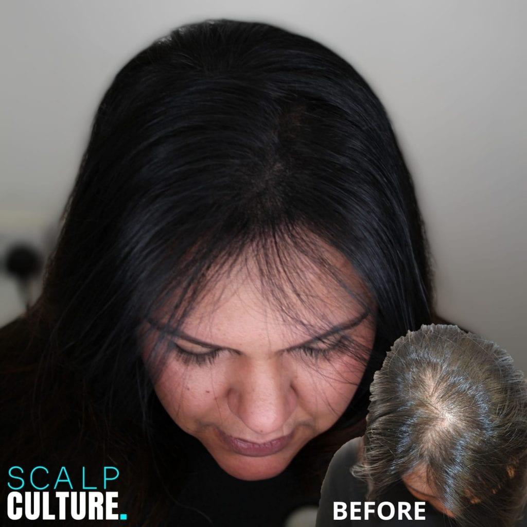 Scalp Micropigmentation for female hair loss