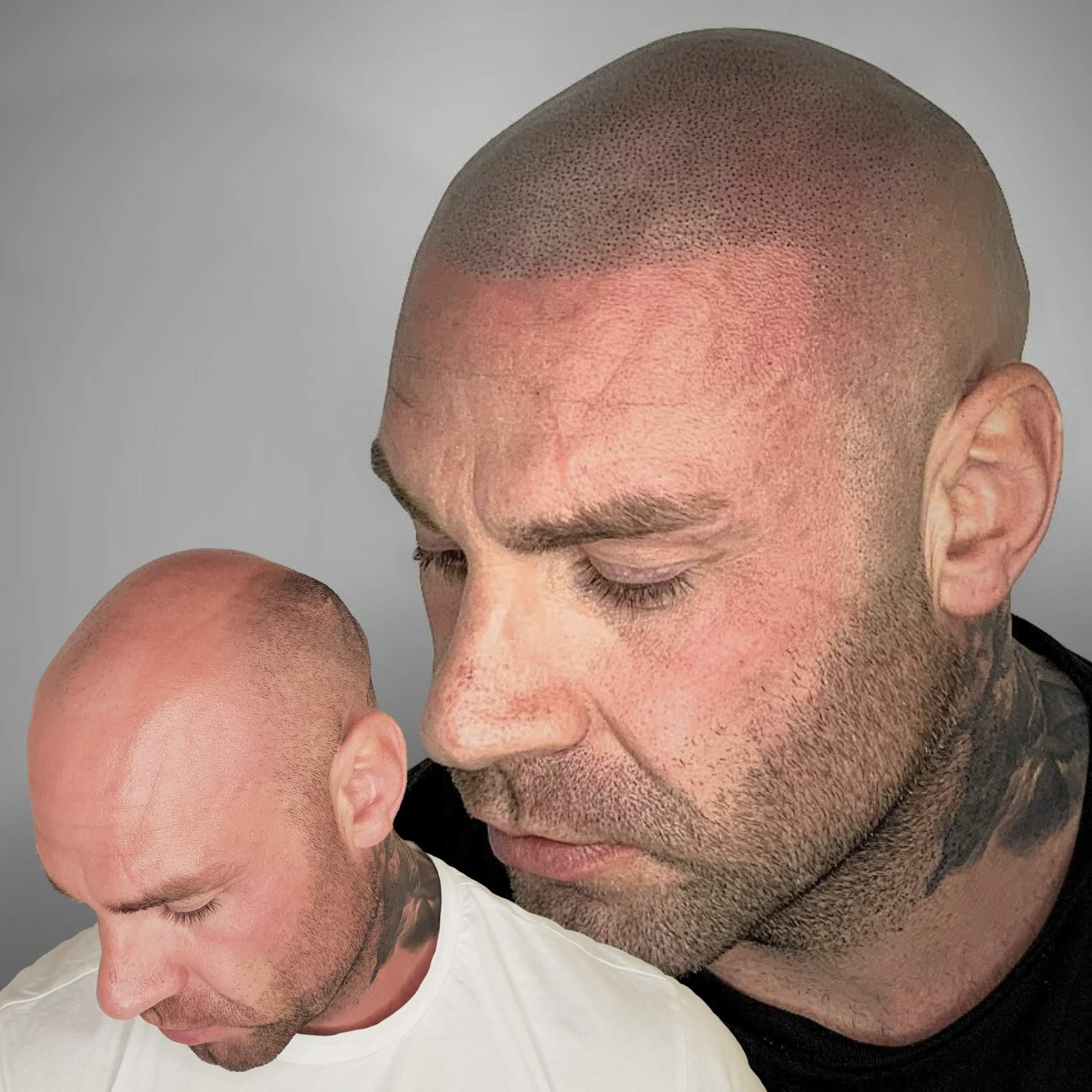 Scalp Micropigmentation longer hair