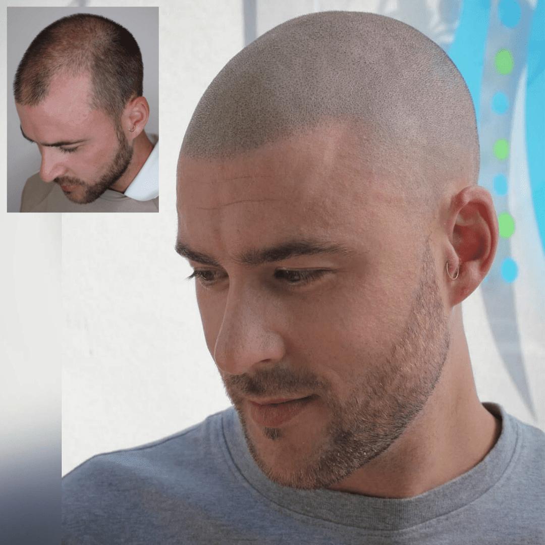 Scalp Micropigmentation longer hair