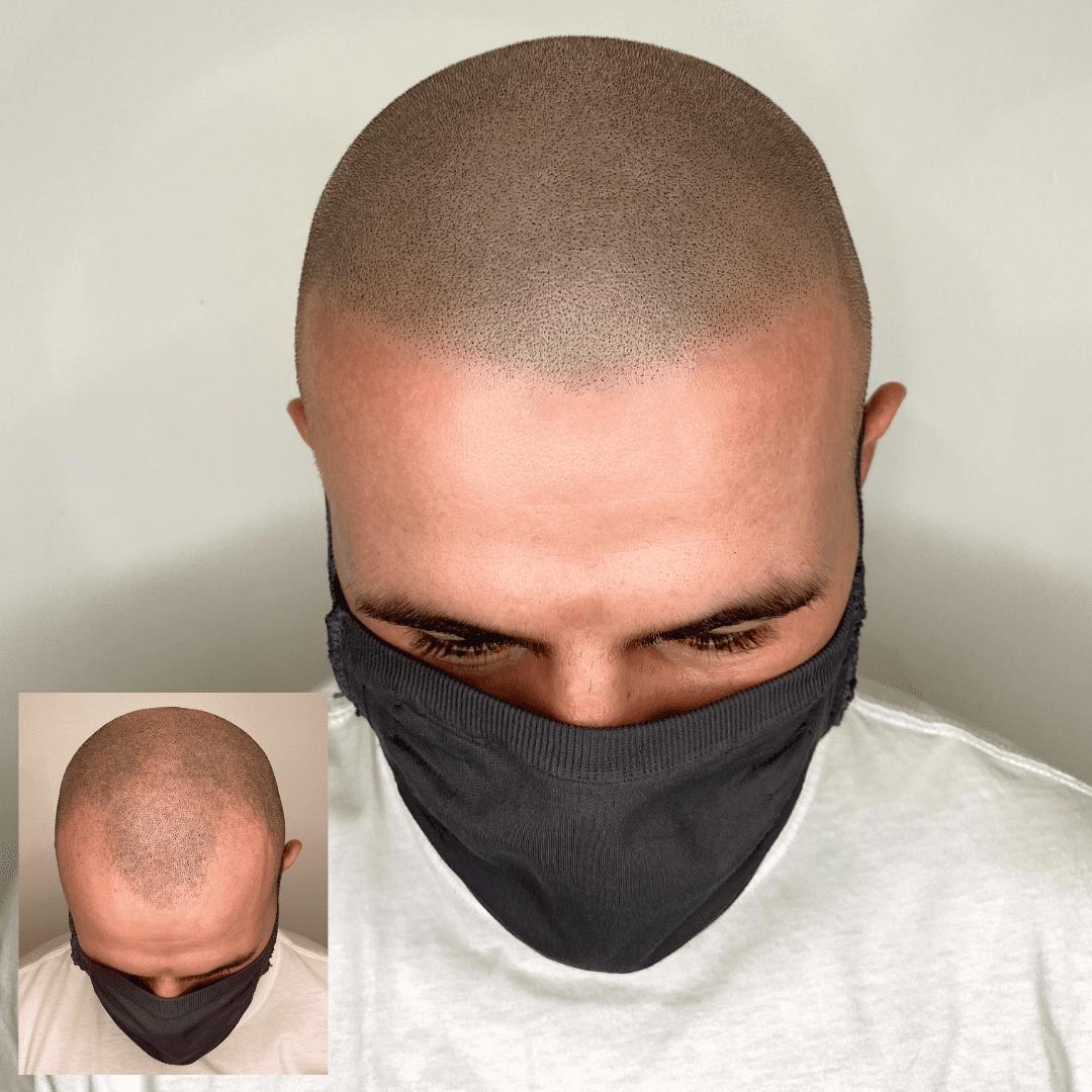 Scalp Micropigmentation hairline